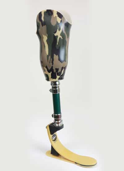 Custom Prosthetic Leg Fabrication