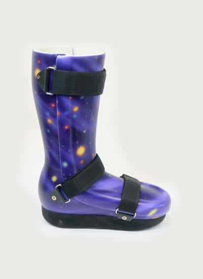 Custom Orthotic Boot Fabrication
